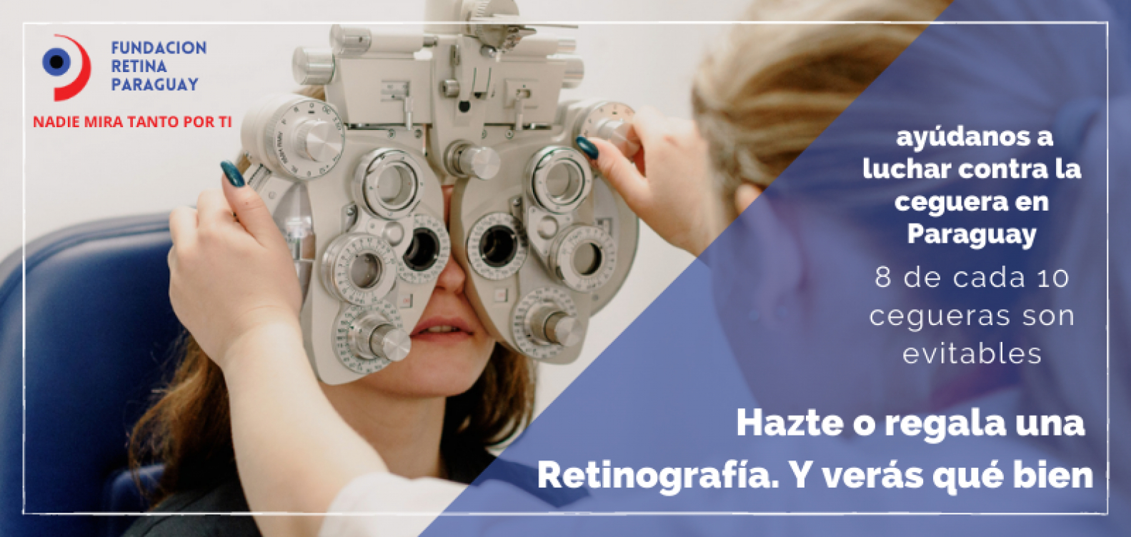ayúdanos a luchar contra la ceguera evitable